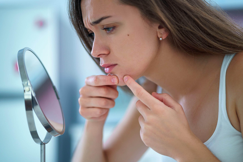 Secrets de Miel - produits naturels - cosmétiques naturels - apithérapie - routine acne - routine anti-acné - boutons acné - Made in france