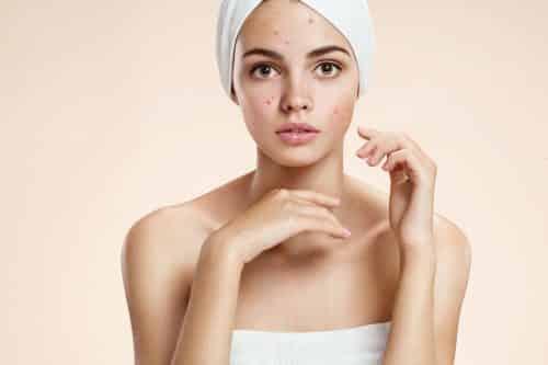 acné juvénile - acné hormonal - secrets de miel - apithérapie - vdi - anti-acné - produits naturels - cosmétiques